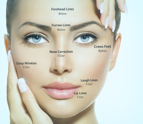 Using Neuro toxins(Injectables) and Fillers together, the perfect combo